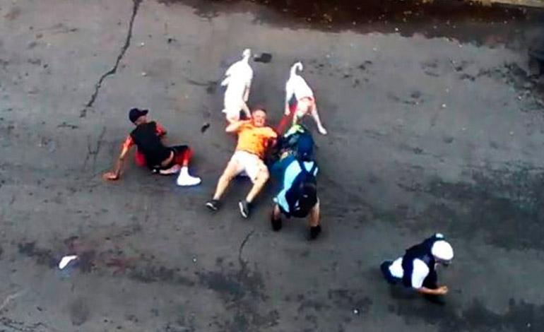 francesco-bove-atacado-por-pit-bull